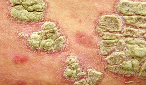 Экссудативный псориаз - форма
