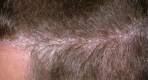 Чем лечить псориаз на голове, симптомы