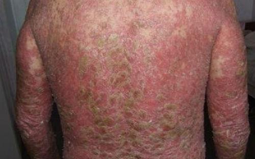Что такое псориатическая эритродермия