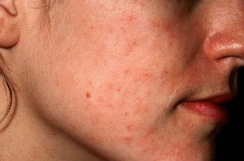 Симптомы псориаза на теле
