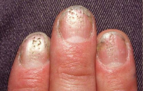 Псориаз ногтей, лечение, причины, симптомы