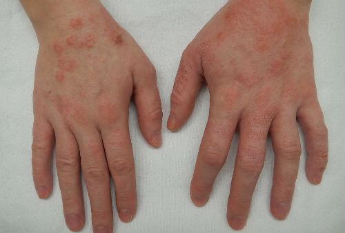 Псориаз у детей. Кожные болезни