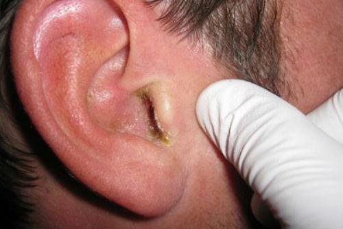 Псориаз в ушах, лечение