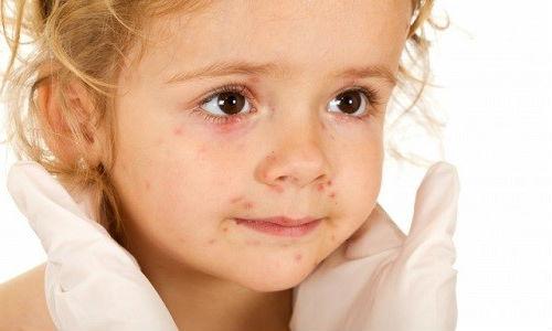 псориаз у ребёнка